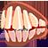 :dentures: