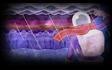 Background - The Rift