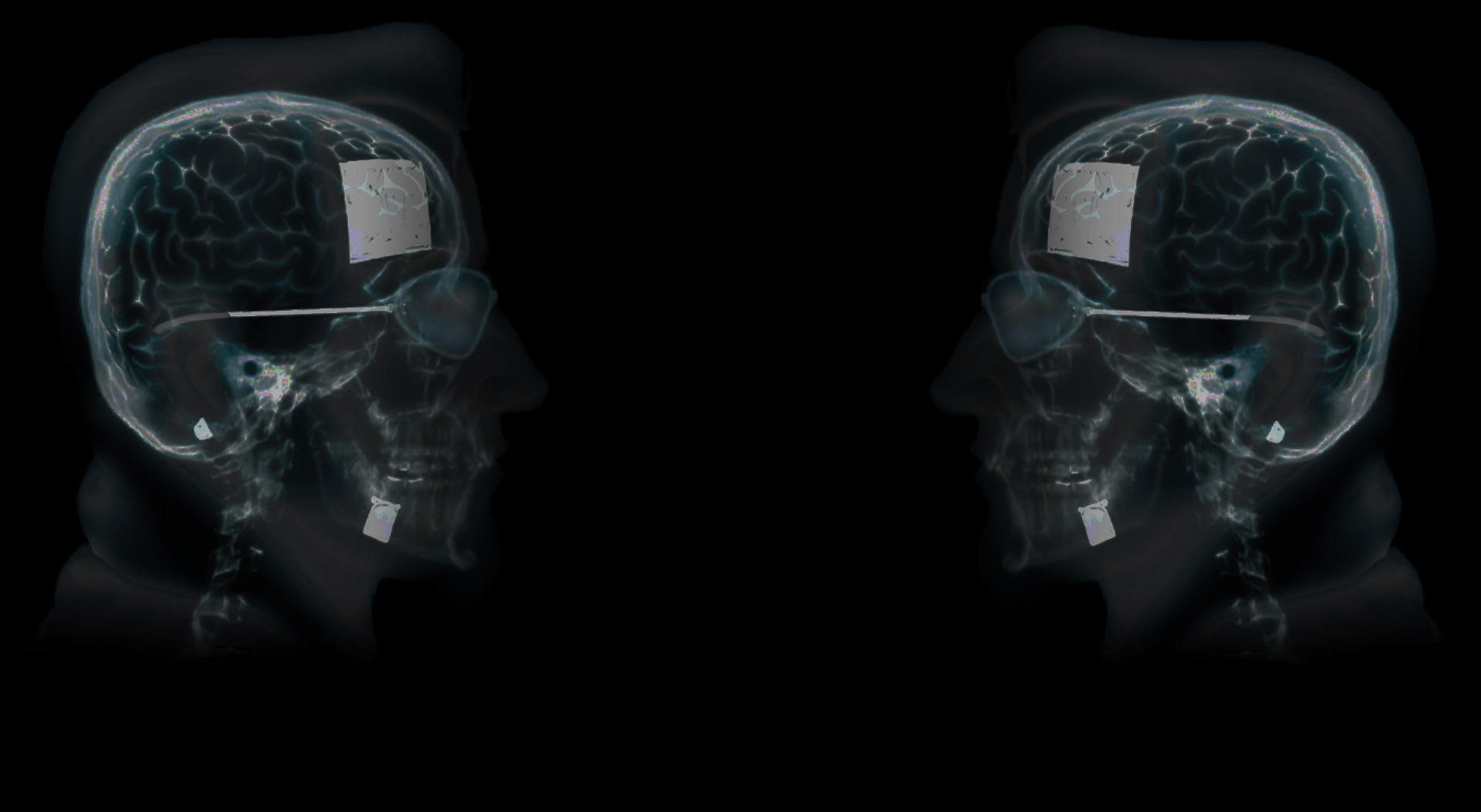Dude X-Ray